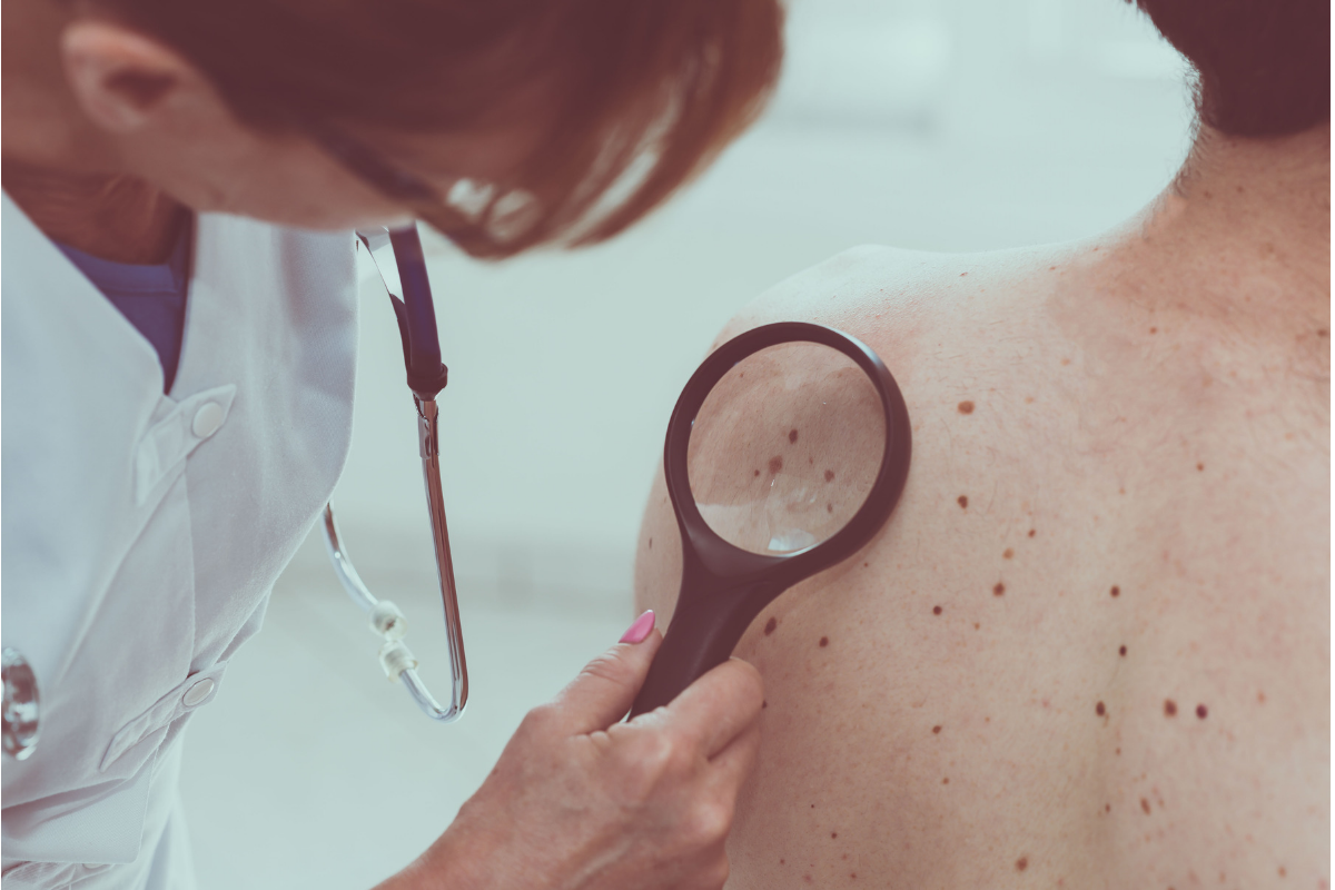 signs of late stage skin cancer